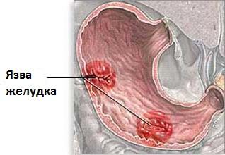 Curare l'ulcera allo stomaco con rimedi naturali
