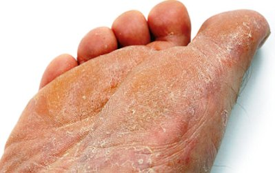 Fungo di unghie e il trattamento di unghia coltivato