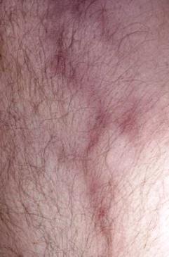 Il miglior trattamento di varicosity e thrombophlebitis