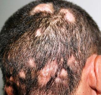 Galvos plauku grybelis