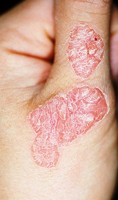 Cura di eczema San Pietroburgo