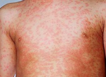 Olio doliva da eczema su risposte di mani