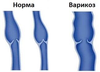 Flebektomiya combinato di vene varicose