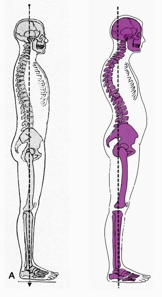 Come accelerare la cura di frattura spinale